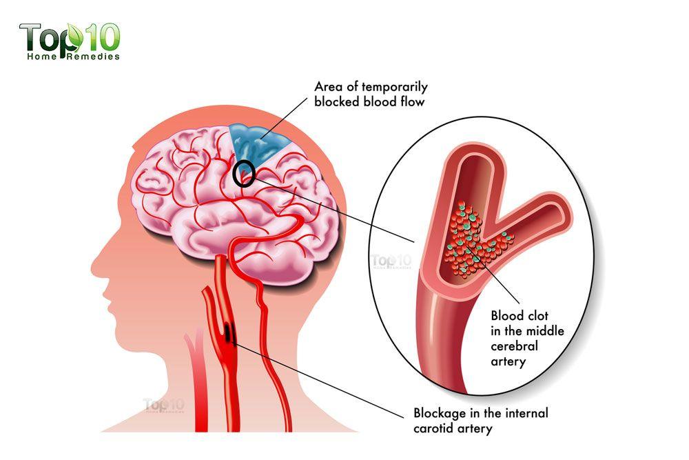 Fetal growth restriction brain development picture 1