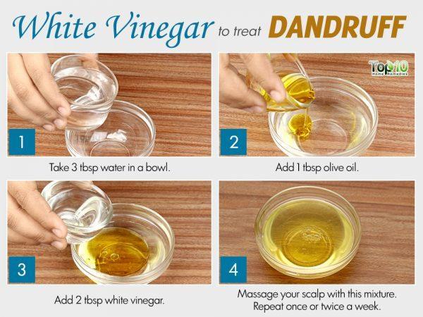 white vinegar for dandruff