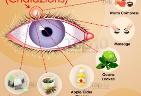 Home Remedies for Eyelid Cysts (Chalazions)