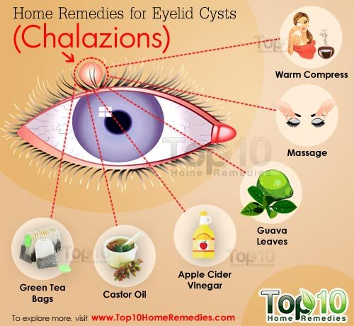 How To Use Natural Remedie For Chalazia Or Stye