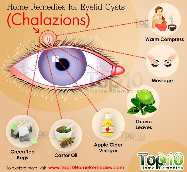 Home Remedies For Eyelid Cysts Chalazions Top 10 Home Remedies