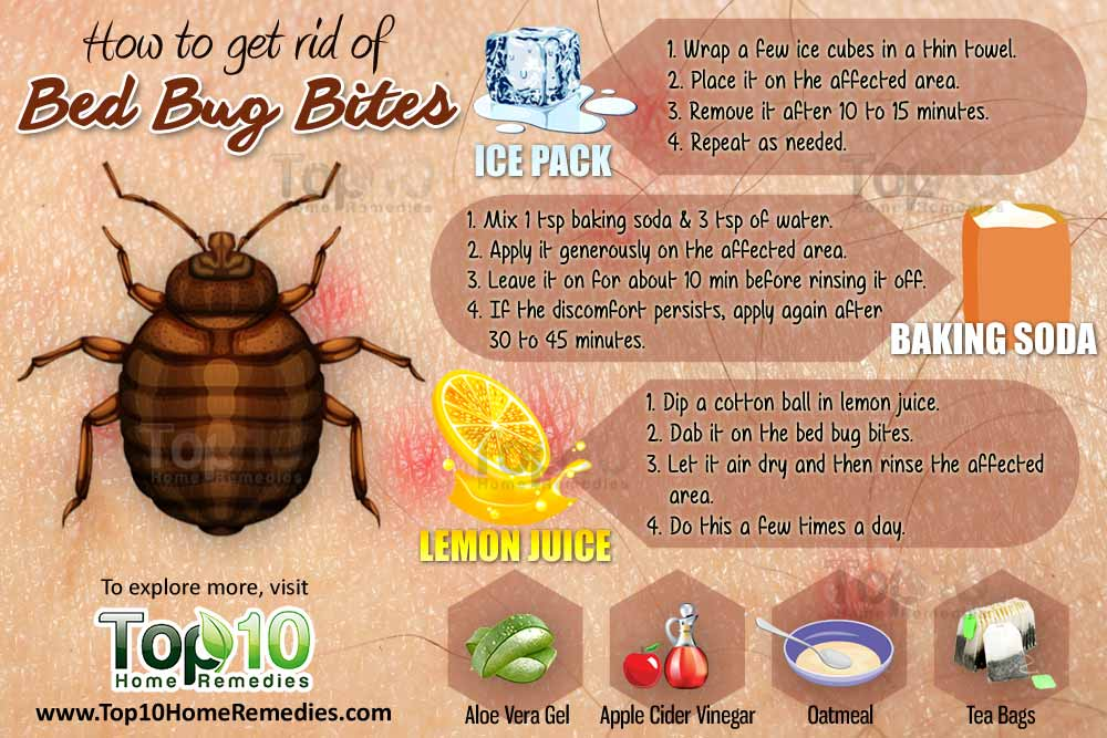How to Get Rid of Bed Bug Bites Top 10 Home Remedies
