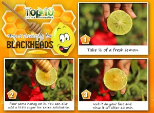 Lemon honey home remedy for blackheads