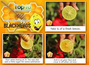 Lemon honey home remedy for blackheads