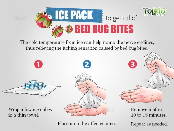ice pack for bed bug bites