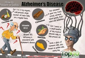 How to Prevent or Delay Alzheimer's Disease
