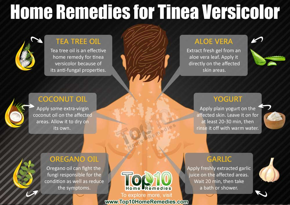 home remedies for tinea versicolor | top 10 home remedies, Skeleton