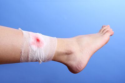 delays wound healing