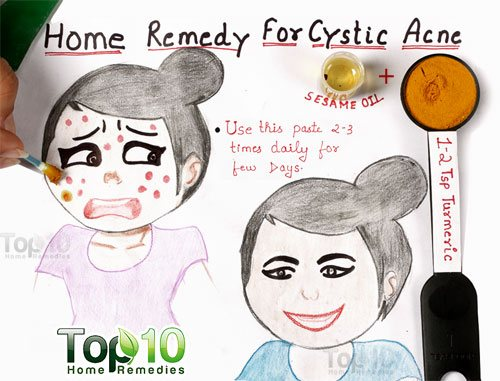 cystic acne home remedy