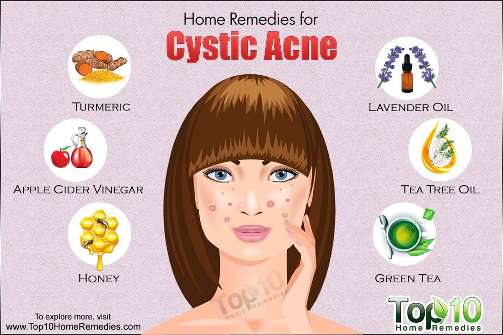 Homeopathic Cystic Acne Treatment