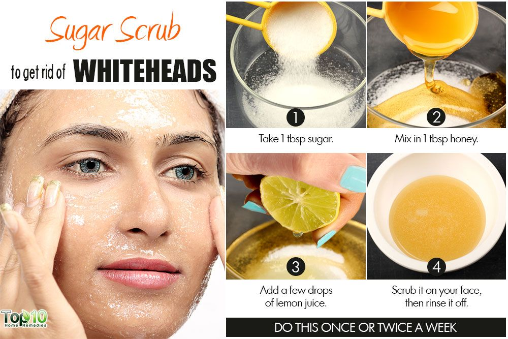 Best Home Remedies For Pimples Fast