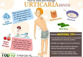 How to Treat and Manage Urticaria
