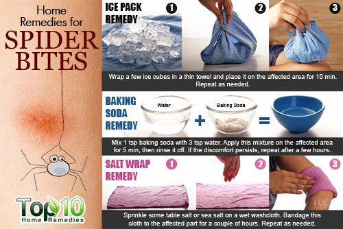 Home Remedies For Spider Bites Top 10 Home Remedies
