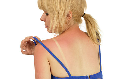treats sunburn