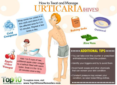 how to manage urticaria
