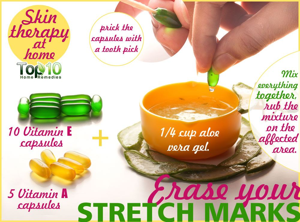 How To Get Rid Of Stretch Marks Permanently Naturally