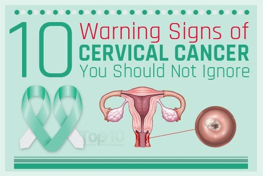 10 warning signs of cervical cancer you should not ignore | top 10, Skeleton