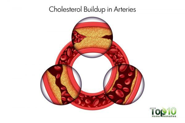 cholesterol buildup in arteries