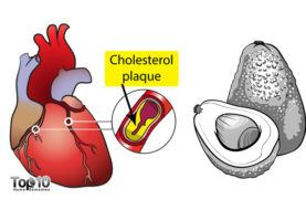 Top 10 Superfoods to Lower Cholesterol
