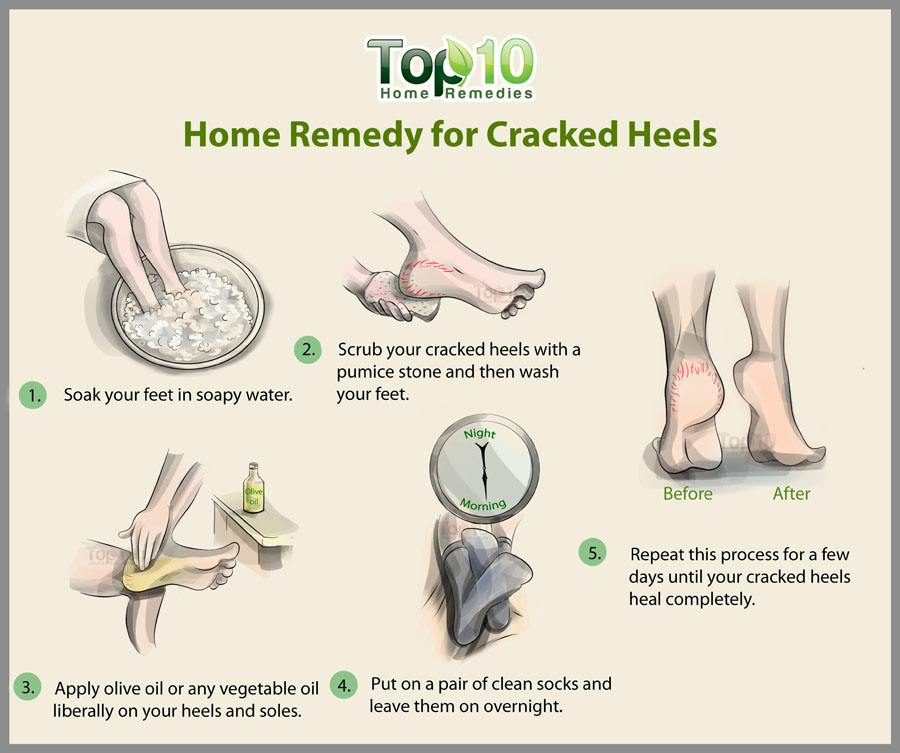 At Home Foot Scrub Remedy