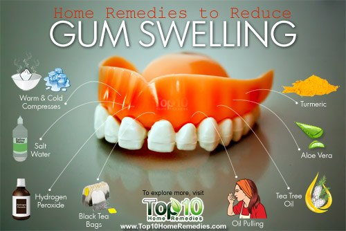 home remedies to reduce gum swelling