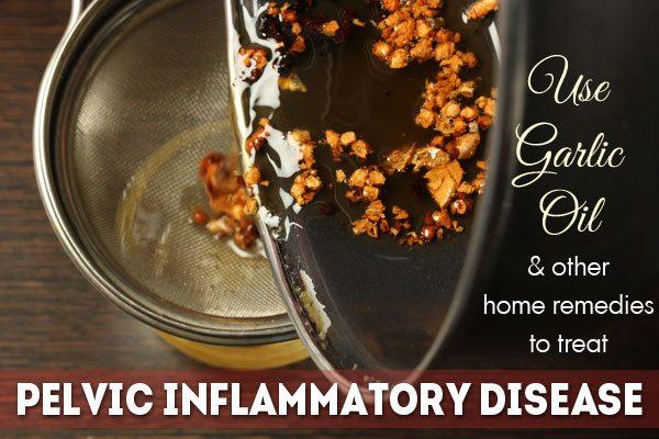 Home Remedies for Pelvic Inflammatory Disease | Top 10 ...