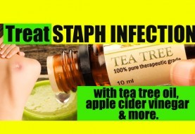 Home Remedies for Staph Infection