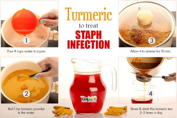 turmeric for staph infection