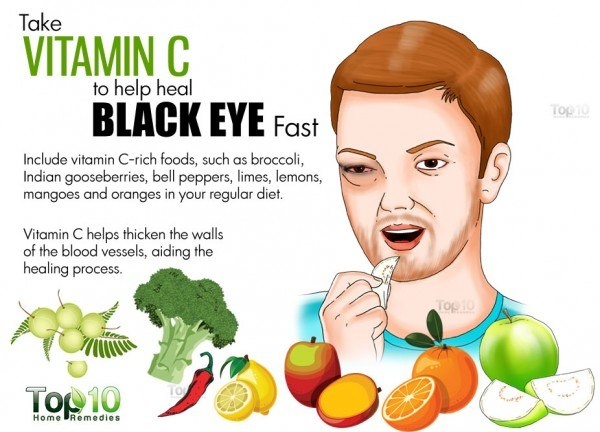 vitamin C for black eye