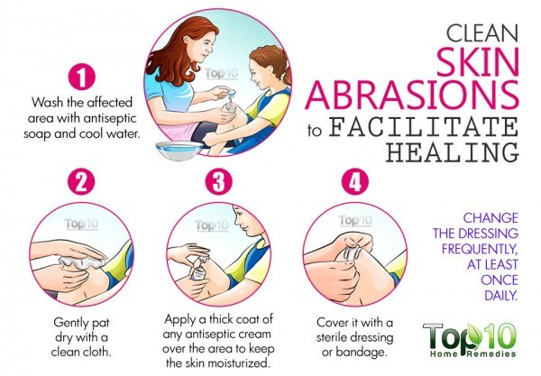 clean skin abrasions to help them heal