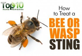How to Treat a Bee or Wasp Sting