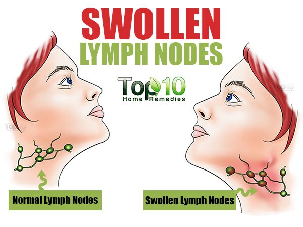 Normal vs. Swollen Lymph Node