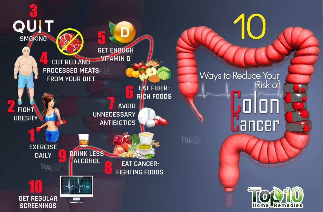 10 Ways to Reduce Your Risk of Colon Cancer | Top 10 Home ...