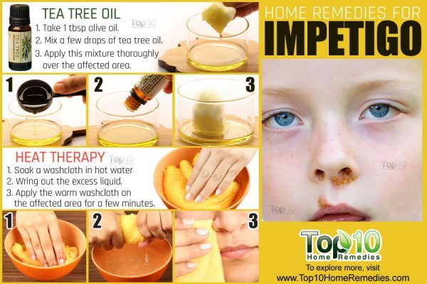 Heal Dermatitis The Natural Way Overnight