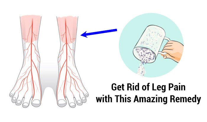 Home Remedies For Leg Pain Top 10 Home Remedies