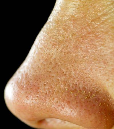 opens pores