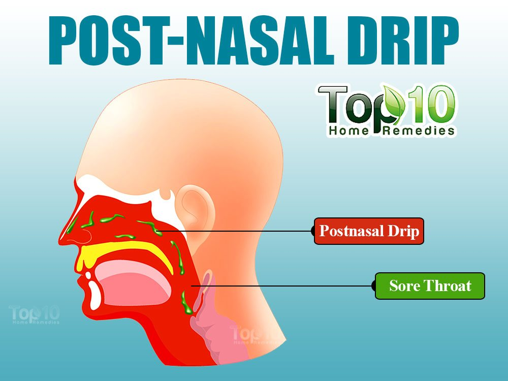 Post Nasal Drip Causing Sore Throat