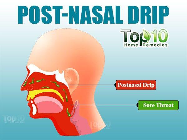 Illustration Showing Post Nasal Drip