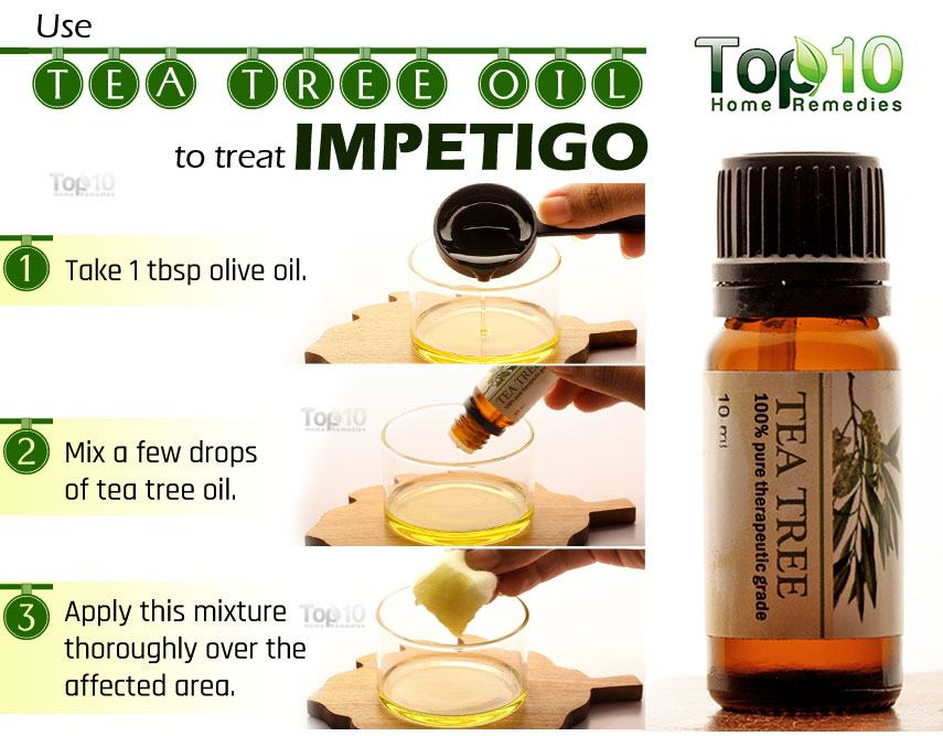 home remedies for impetigo | top 10 home remedies, Human Body