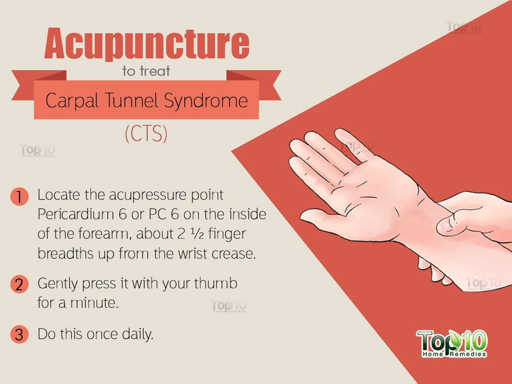 carpal tunnel syndrome physiotherapy case study Our keyword existed of carpal tunnel syndrome or cts and studies as well 1 boston carpal tunnel treatment of carpal tunnel syndrome with.