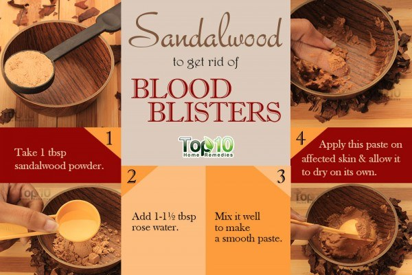 sandalwood remedy for blood blisters