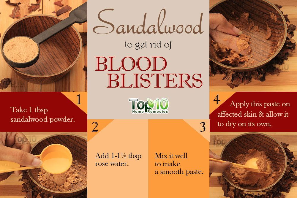 How To Get Rid Of Blood Blisters Top 10 Home Remedies