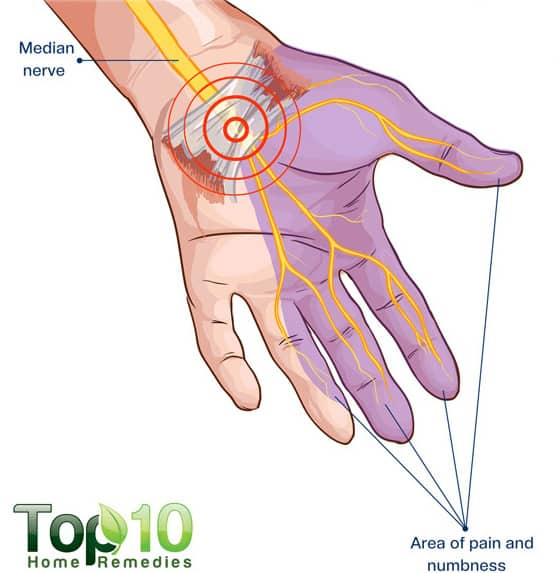diagram for Carpal Tunnel Syndrome