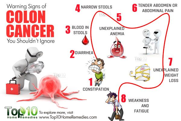10 Warning Signs Of Colon Cancer You Shouldn T Ignore