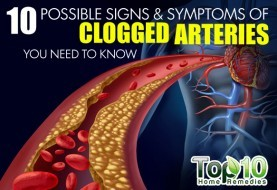 10 Possible Signs and Symptoms of Clogged Arteries You Need to Know