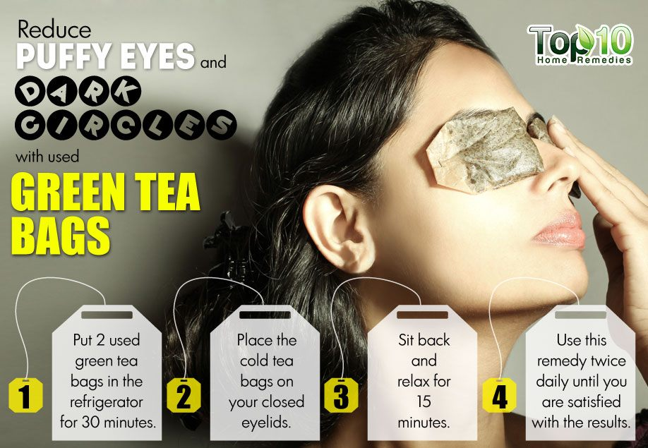 Natural Remedies For Sleepy Eyes