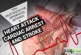 You Must Know the Differences between a Heart Attack, Cardiac Arrest and Stroke