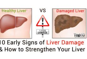 10 Early Signs of Liver Damage & How to Strengthen Your Liver