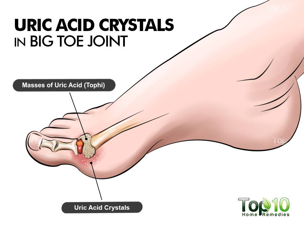 how to eliminate uric acid naturally treating gout in feet can gout affect toes other than big toe