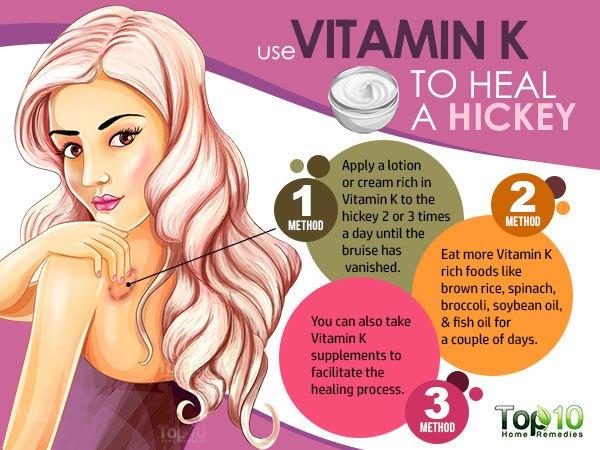 vitamin K for hickey
